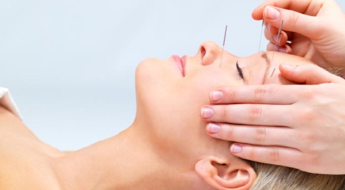 Facial Acupuncture & Massage